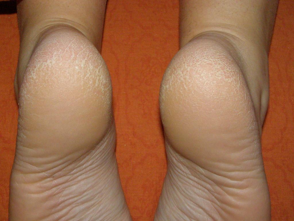 Треснула кожа на ступне ног