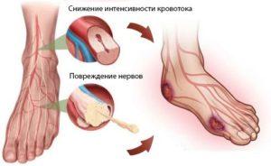diabeticheskaya_stopa